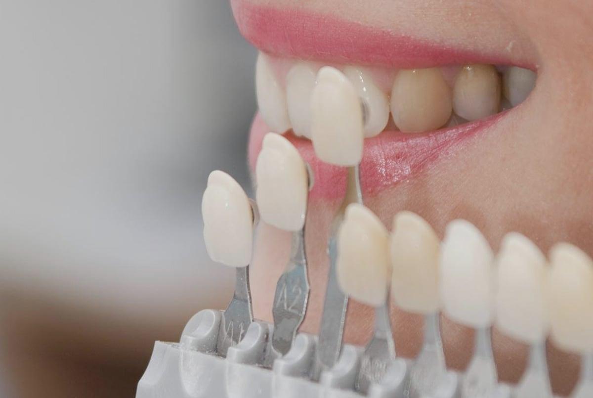 Виниры на зубы цены и виды, установка винира на передний зуб в Москве,